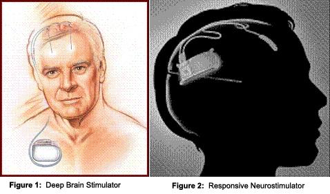 deep brain stimulator / responsive neurostimulator